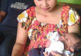 Bayi Lahir Tanpa Lubang Anus di Kota Mojokerto Butuh Bantuan